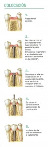 Colocación Implantes 2-6