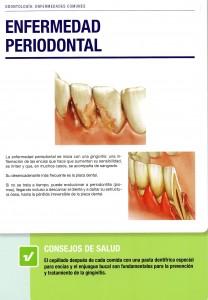 Enfermedad Periodontal 2-3