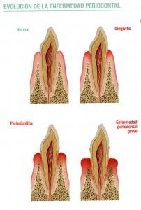 Evolución Enfermedad Periodontal 2-4