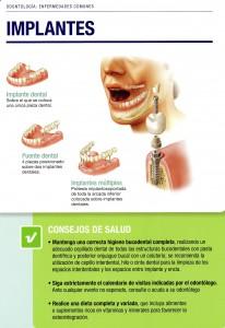 Implantes 2-5