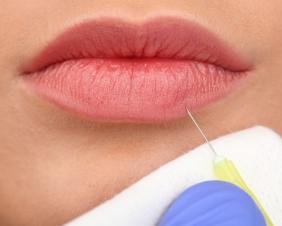 Relleno-de-labios-con-acido-hialuronico-