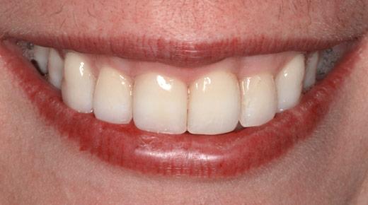 periodoncista-madrid-periodontitis